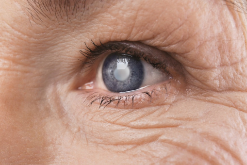 Getting to Know More About Macular Degeneration